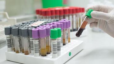 Monocyty we krwi: czym są, jakie są normy monocytów? O czym świadczą podwyższone monocyty?
