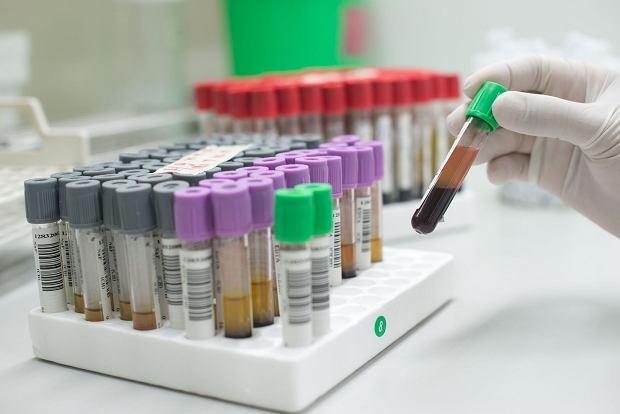 Podwyższone monocyty we krwi - przyczyny