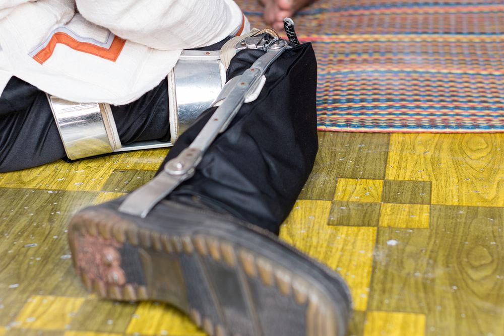 Heinemedina to potoczna nazwa choroby Heinego-Medina, za granicą kojarzonej jako polio. Może prowadzić do paraliżu kończyn (zwłaszcza nóg) i zaniku mięśni