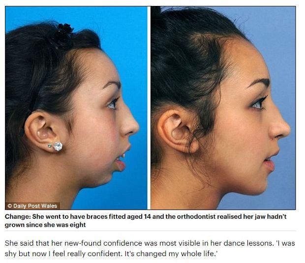 Operacja twarzy