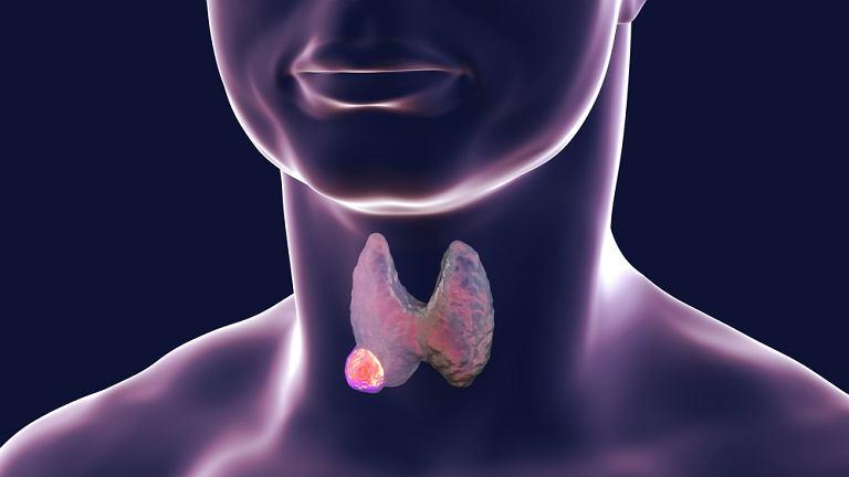 Jako kluczową przyczynę powstawania guzów tarczycy podaje się niedobór jodu w organizmie
