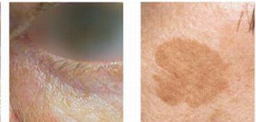 Przebarwienia na skórze - przed i po zabiegu laserowym