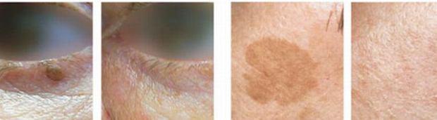 Przebarwienia skórne - jak usuwać? Dla kogo laser, dla kogo piling?