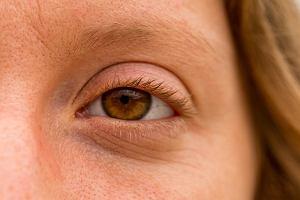 Drganie powieki - skąd się bierze i kiedy powinniśmy się nim zaniepokoić?