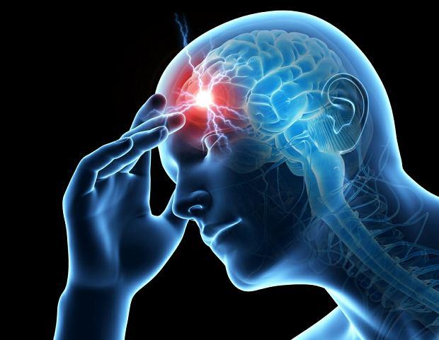 Kłótnia między kardiologami a neurologami. Chodzi o leczenie udarów