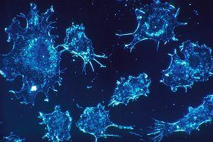 Nowotwór i rak to nie to samo. Podział i nazewnictwo nowotworów