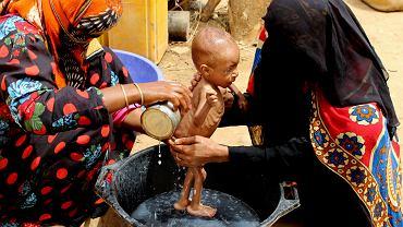 Głód w targanym wojną domową Jemenie.