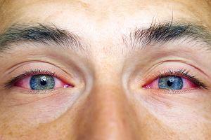 Czerwone oko: przyczyny, objawy, leczenie