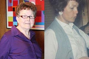 Tak dzi� wygl�da pierwsza kobieta, kt�rej wszczepiono implanty piersi
