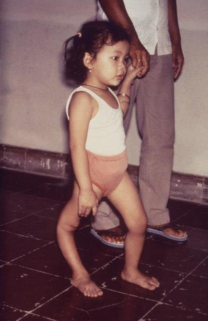 Dziewczynka ze zdeformowaną prawą nóżką w następstwie porażennego poliomyelitis (polio)