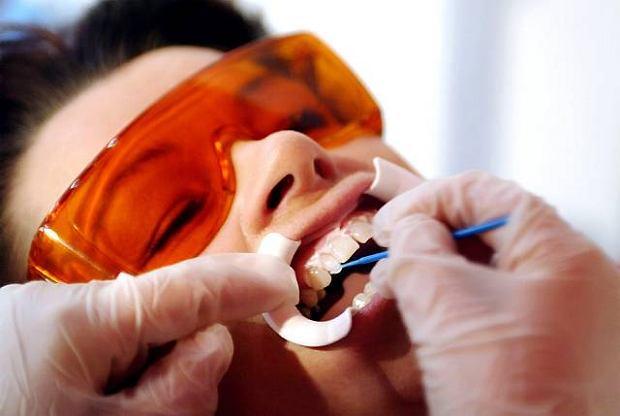Jak próchnica szczerbi nam zęby