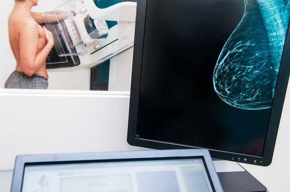 Rak piersi - pojawiło się nowe narzędzie, które poprawi jego diagnostykę, a w przyszłości również leczenie