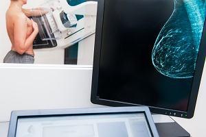 Nowe narzędzie w walce z rakiem piersi. Pomoże uniknąć przerzutów lub dokładnie ocenić, czy są śmiertelne