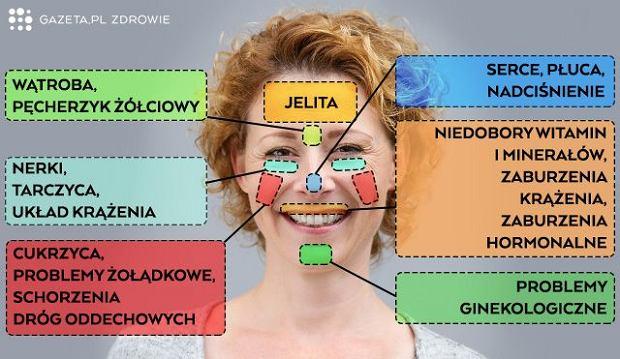 Choroby wypisane na twarzy - nauka czy szarlataneria?