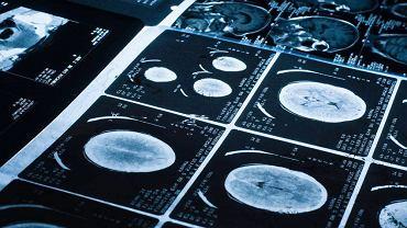 Skany mózgu zaatakowanego przez nowotwór