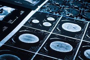 Zaawansowane stadium raka płuca? To wciąż nie wyrok