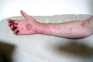 Wapno nie pomaga alergikom: zaskakujące polskie badania