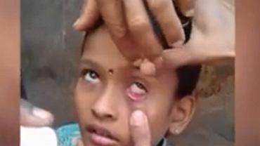 Mrówka w oku dziecka  