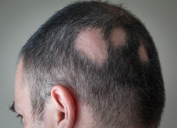 Łysienie plackowate - przykra dolegliwość, z którą trudno walczyć. Objawy łysienia plackowatego i jego leczenie