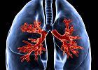 Rak. Płuca