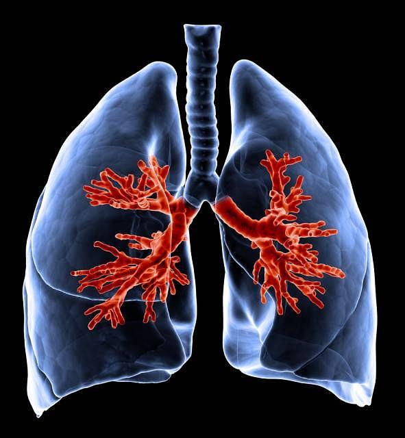 W Polsce rak płuca to numer jeden wśród nowotworów nękających mężczyzn i numer dwa (po raku piersi) wśród kobiet