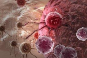 """Rak piersi, prostaty, p�uc, jelita, macicy - w �rodowym magazynie """"Tylko Zdrowie"""""""
