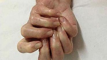 Syndrom lustrzanej ręki