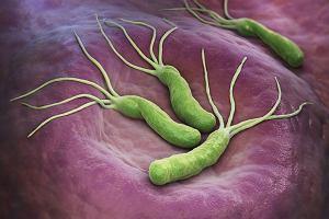 Helicobacter pylori - wróg żołądka. Objawy, diagnoza i leczenie zakażenia Helicobacter pylori