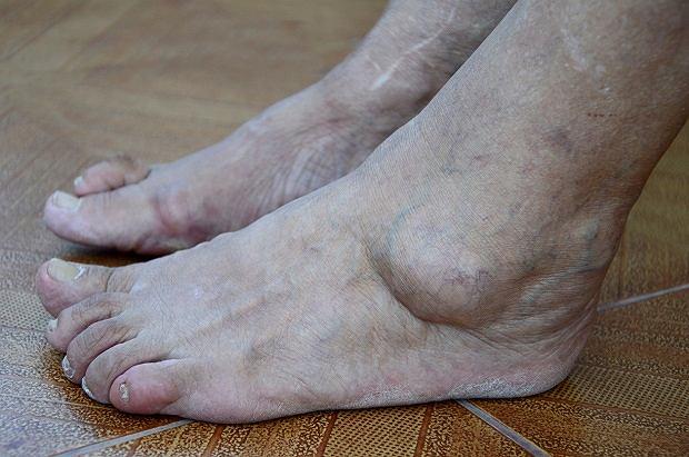 Powiększenie stóp to możliwa oznaka akromegalii