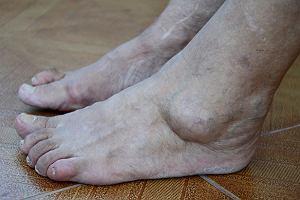 Akromegalię widać, jednak niewielu o niej wie. Jak rozpoznać tę groźną chorobę?