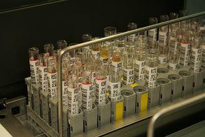 Płynna biopsja - nowe badanie do diagnostyki raka prostaty. Na czym polega płynna biopsja, gdzie można ją zrobić i czy jest refundowana?