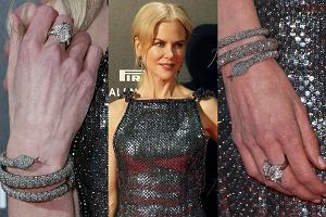 Nicole Kidman właśnie promuje swój najnowszy film Lion. Droga do domu. Na czerwonym dywanie aktorka jak zawsze zachwycała. Od lat mówi się jednak, że 49-letnia gwiazda poddaje się rozmaitym zabiegom medycyny estetycznej. Jej twarz jest gładka, ma wyraźny kontur i na próżno szukać na niej jakichkolwiek oznak tego, że czas umyka. Jedynym szczegółem, który zdradza wiek Kidman, są jej... dłonie. Patrząc na zbliżenia, aż trudno uwierzyć, że to jedna i ta sama osoba. A jak jest w przypadku innych gwiazd? Zajrzyjcie do galerii i przekonajcie się sami!