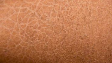 Mimo że siność śiatkowata to schorzenie skóry to może być związane z wrodzoną chorobą mieśnia sercowego