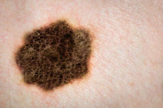 Rak skóry
