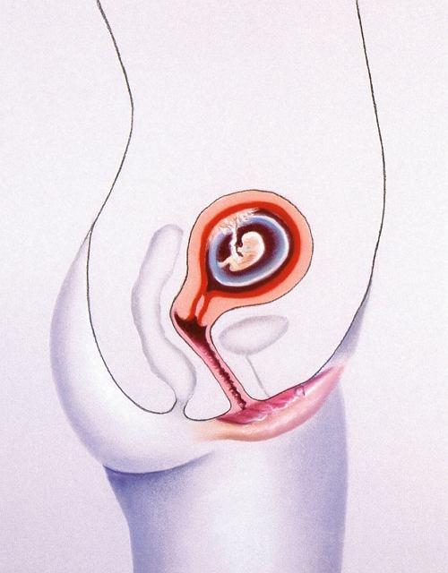 W trzecim miesiącu ciąży, ok. 14 tygodnia, można już wysłuchać tętna płodu