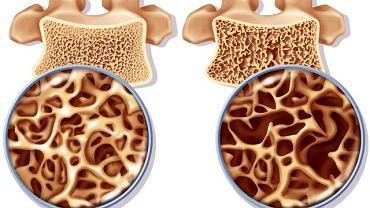 """Nazwa """"rzeszotowienie kości"""" dobrze obrazuje istotę problemu. Dotkniętą schorzeniem tkankę ( po prawej) przyrównać można do rzeszota. Jest w niej dużo pustych przestrzeni."""
