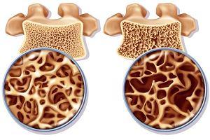 Zagro�enie osteoporoz�