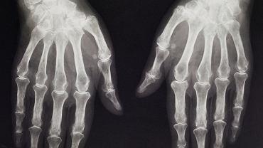 Radiografia rąk starszego pacjenta z objawami artrozy - predyspozycje do tego rodzaju choroby zwyrodnieniowej stawów są prawdopodobnie dziedziczne (w ok. 50% przypadków)