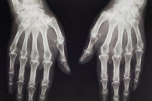 Artroza i choroby stawów