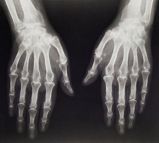 Radiografia r�k starszego pacjenta z objawami artrozy - predyspozycje do tego rodzaju choroby zwyrodnieniowej staw�w s� prawdopodobnie dziedziczne (w ok. 50% przypadk�w)