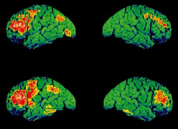 Schizofrenia. Pozytonowa tomografia emisyjna lewej i prawej p�kuli m�zgowej osoby zdrowej (na g�rze) oraz osoby dotkni�tej schizofreni� (na dole), mierzonych podczas m�wienia. Obszary zaznaczone kolorem ��tym i czerwonym pokazuj�, jak znaczne s� r�nice pomi�dzy obszarami m�zgu uaktywnionymi podczas rozmowy u pacjenta zdrowego i u schizofrenika