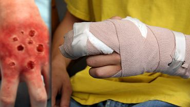 12-letni chłopiec został oparzony przez zagadkową roślinę.