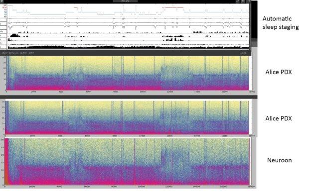 Porównanie danych polisomnograficznych z profesjonalnego sprz�tu i maski NeuroOn