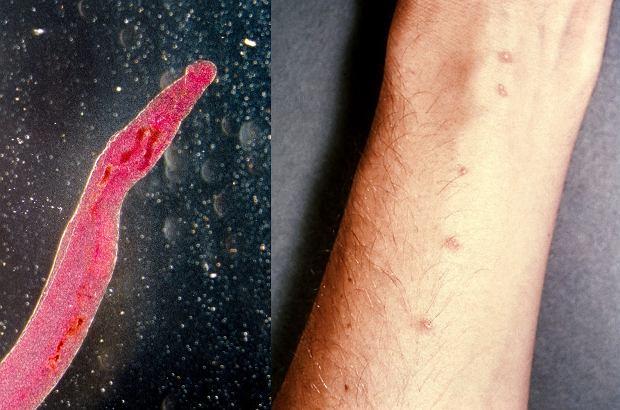 17 osób dało się zarazić groźnym pasożytem. Mają pomóc naukowcom stworzyć ważną szczepionkę