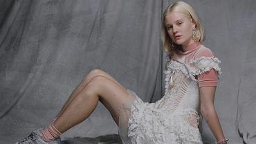 Nieogolone nogi Arvidy stały się źródłem wyzwisk i gróźb pod jej adresem.