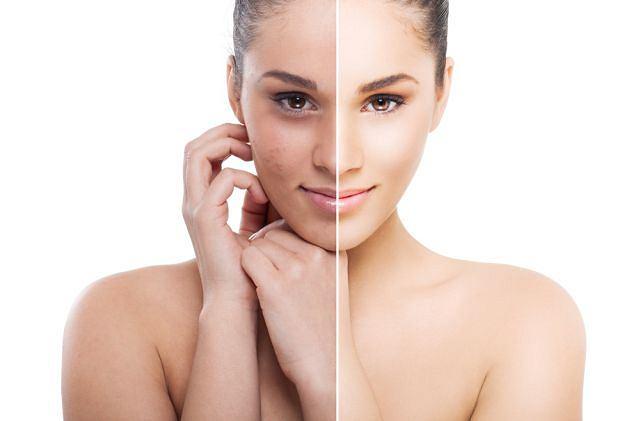 Usunięcie starego naskórka daje wyraźny efekt odświeżenia skóry