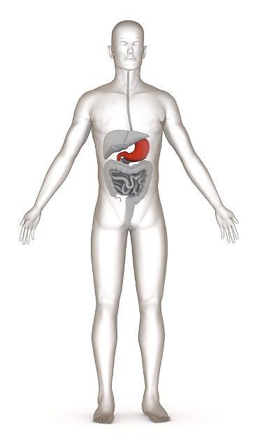 Choroba wrzodowa żołądka i dwunastnicy