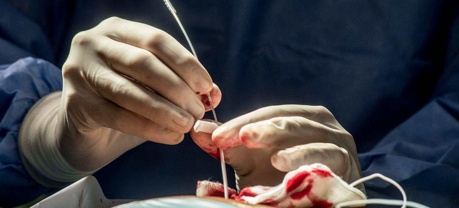 Operacja stożka kręgowego