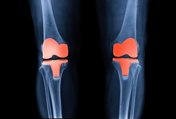 Endoproteza stawu kolanowego
