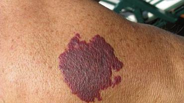 Toczeń jest chorobą autoimmunologiczną. Najbardziej charakterystycznym objawem choroby jest pojawiające się na skórze czerwone znamię (tym charakteryzuje się toczeń rumieniowaty układowy).